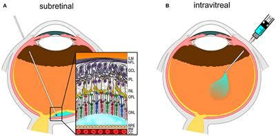 Frontiers | Retinal Gene Therapy: Surgical Vector Delivery